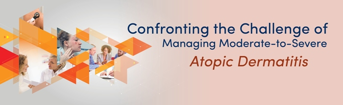 Confronting the Challenge of Managing Moderate-to-Severe Atopic Dermatitis Live Webcast