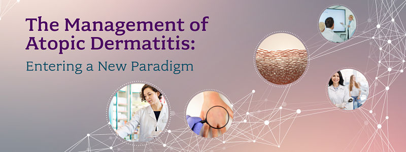 The Management of Atopic Dermatitis: Entering a New Paradigm